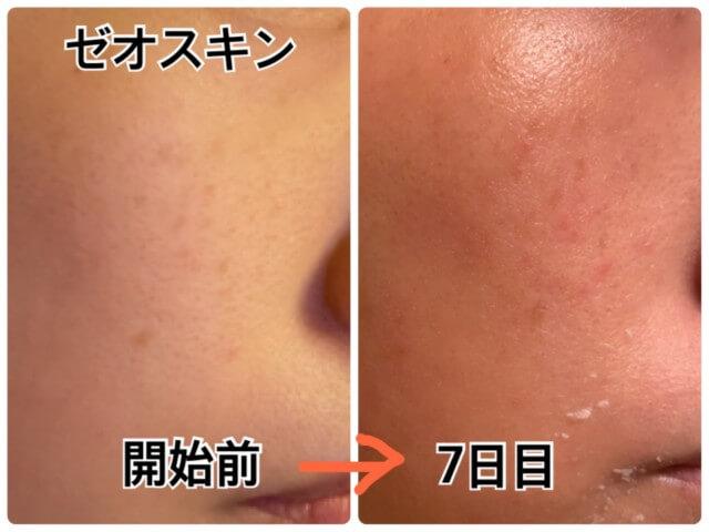 ゼオスキン,開始から1週間後の肌の変化