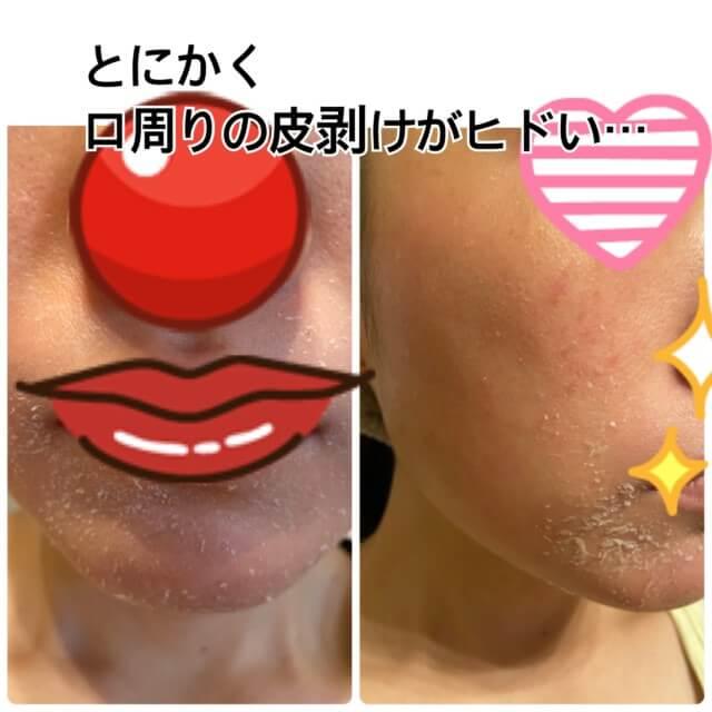 ゼオスキン,反応期の口周りの皮剥げ