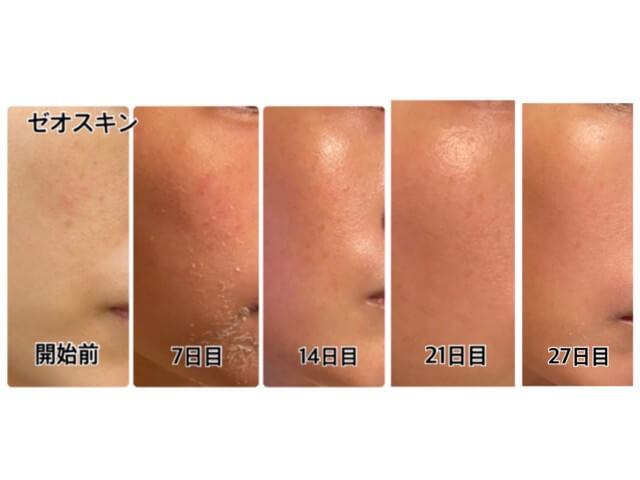 ゼオスキン,5週間目の肌,比較