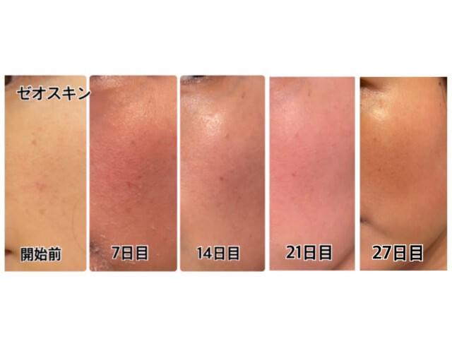 ゼオスキン,4週間目の肌,比較