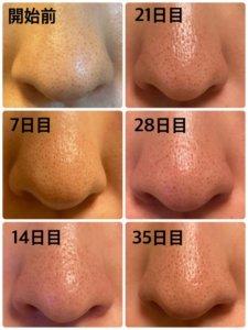 ゼオスキン,5週目,いちご鼻の比較