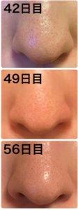 ゼオスキン,鼻の毛穴,効果