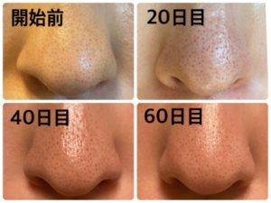 ゼオスキン,鼻の毛穴の改善