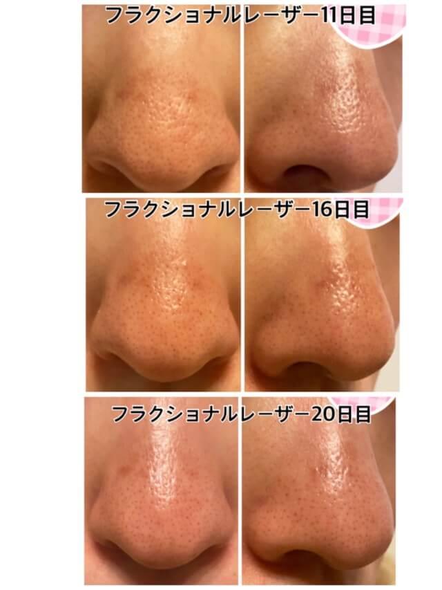CO2フラクショナルレーザー鼻の毛穴への効果