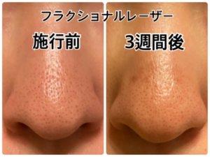 CO2フラクショナルレーザー,毛穴,鼻,3週間後