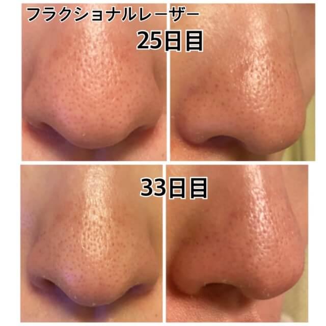 CO2フラクショナルレーザー,鼻の毛穴,比較
