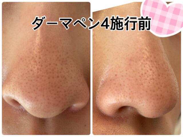 ダーマペン4施行前の鼻の毛穴