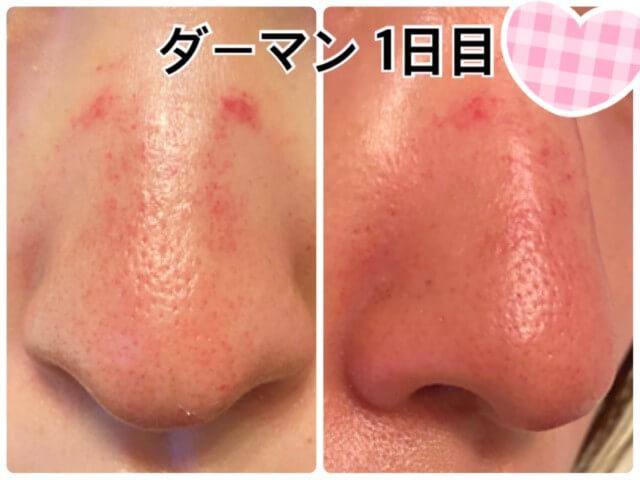 ダーマペン4施行後1日目の鼻の毛穴