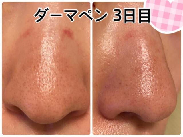 ダーマペン4施行後3日目の鼻の毛穴