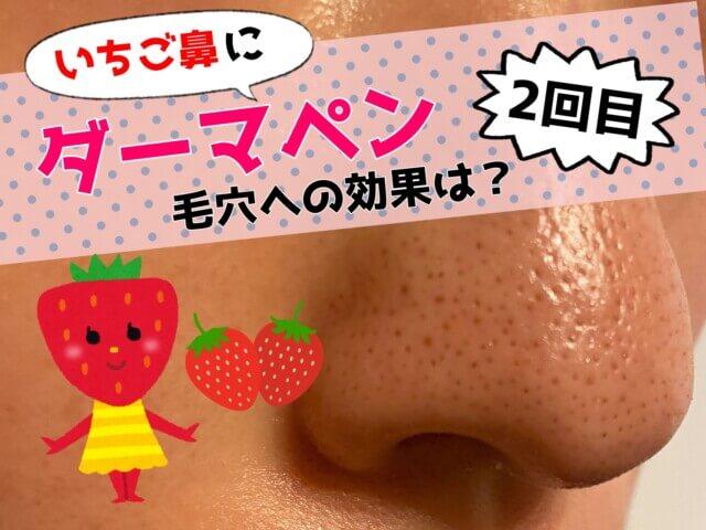 鼻の毛穴,ダーマペンの効果