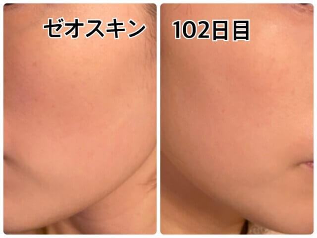 ゼオスキン,移行期の肌の赤みや皮剥げ