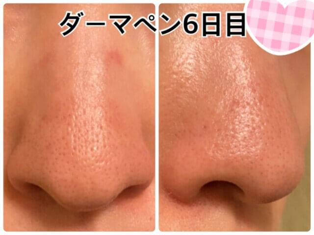 ダーマペン1回目,鼻の毛穴
