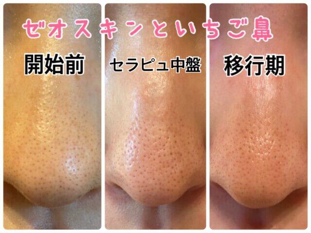 ゼオスキン,移行期,鼻の毛穴