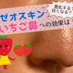 ゼオスキン,鼻の毛穴,効果・悪化