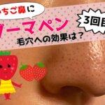 いちご鼻,鼻の毛穴,ダーマペン3回目