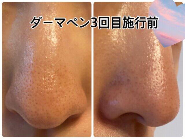 ダーマペン3回目,鼻の毛穴