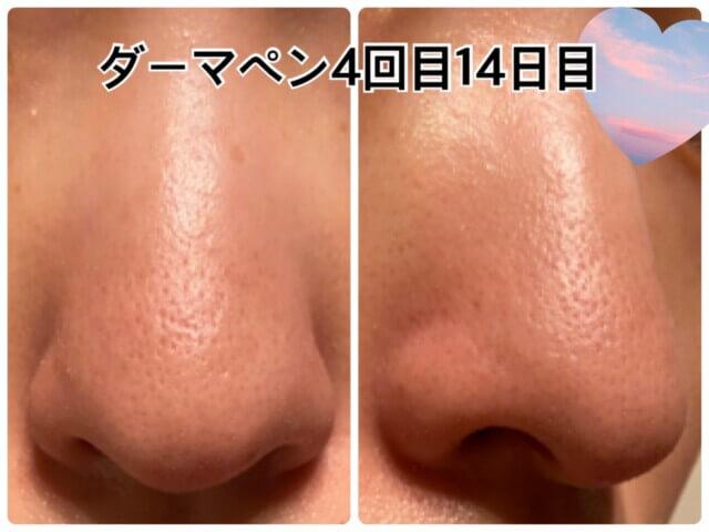 ダーマペン4回目,いちご鼻,鼻の毛穴