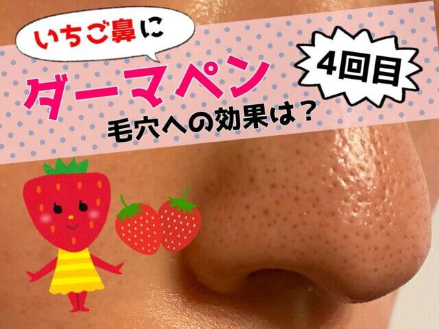 ダーマペン,いちご鼻,鼻の毛穴,効果